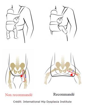 Surveillez régulièrement la position du bébé. Son dos doit être arrondi et  ses jambes repliées. Assurez-vous également que votre bébé est dans une  position ... 022cc3ed695
