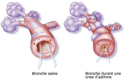 Bronche durant une crise d'asthme, air intérieur