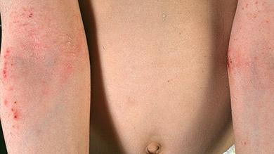 allergie cutanee demangeaison