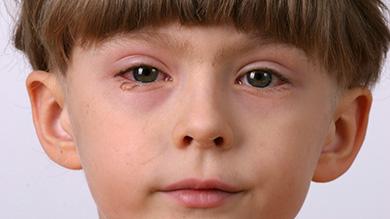 Bolyat les yeux se sont enflés les yeux