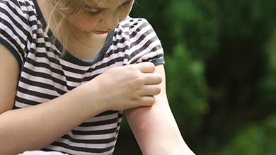 Piqûres d'insectes chez l'enfant: prévenir et traiter